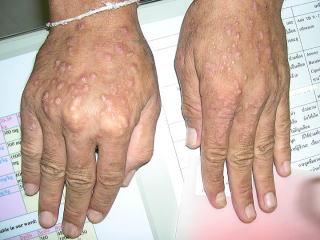 皮膚 エイズ 症状